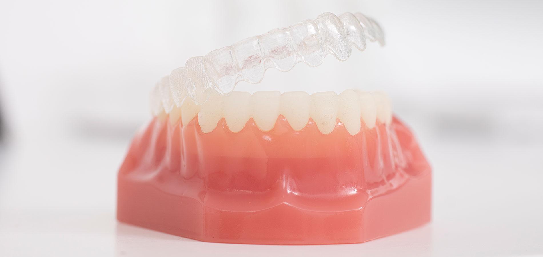 dorothee-jarleton-zahnarzt-praxis-koeln-Titelseite-Blog-Zahnheilkunde-und-Schwerpunkt-Zahnschienen